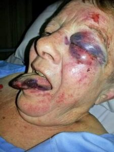 Elderly woman brutally attacked - Why use such excessive violence: