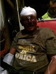 Family of Pretoria brutally attacked during house robbery
