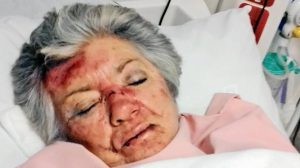 Vicious attack on elderly Kimberley resident