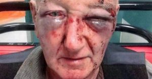 Elderly Farmers (80) Attacked - Paul Roux