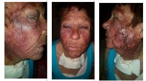 Elderly woman cruelly attacked by barbaric terrorist in small town Reddersburg