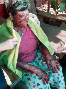 Woman brutally attacked, stabbed in her home, Kuruman - images reflect the crisis that white South Africans are having to endure
