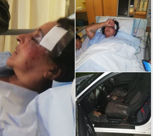Violent Protest action on N2 at Plettenberg Bay leaves woman seriously injured and fighting for her life when a brick was thrown through vehicle's passenger-side window